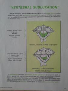 luxation des cervicales